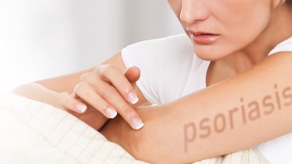 The Swiss Psoriasis Association's survey of Dead Sea treatments showed 50 per cent improvement six months later 3