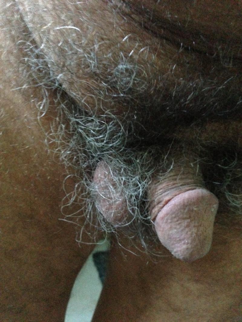 Diffrence entre penis circoncis ou pas?