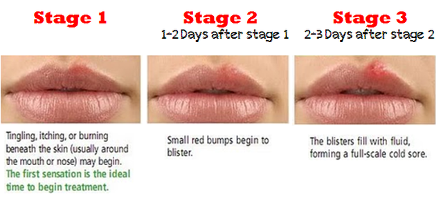 I'll bet most regularly have cold sores which is simply herpes in a different place 1